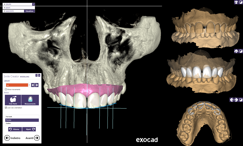 DentalCadScreenshot2