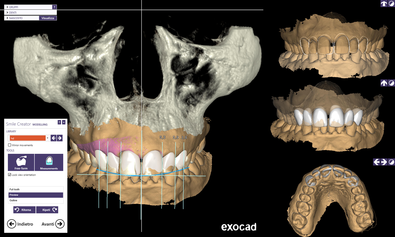 DentalCadScreenshot3