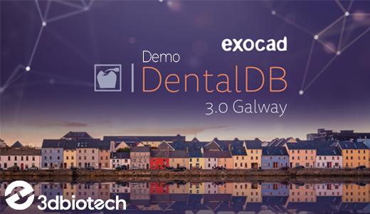 Exocad - Galway - Demo