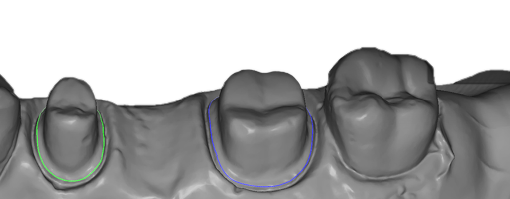 Líneas de cuello   UP300+   UP3D