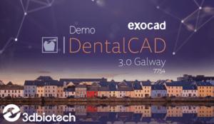 Exocad Demo Galway 3.0   7754